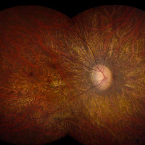 boli-retiniene